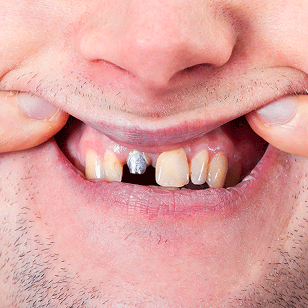 What Is The Alternative to False Teeth - VIP Dental Implant