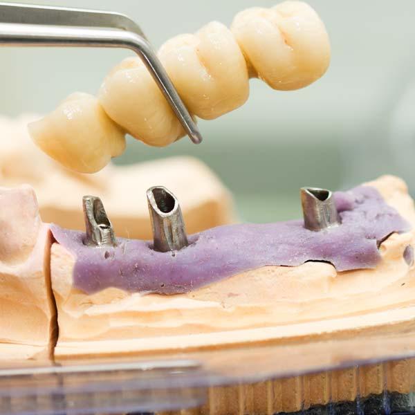 multiple-teeth-implant-houston-doctor