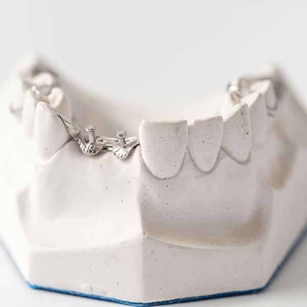 Best Implant Dentist Near Me