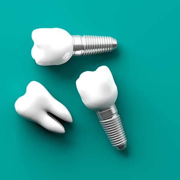 dental-implants-houston-tx