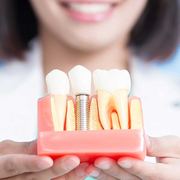 Best Implant Dentist Near Me: Find Dental Implant Specialist Near Me
