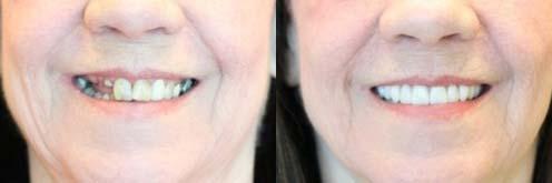 houston tooth implant