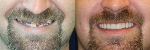 implants dental houston