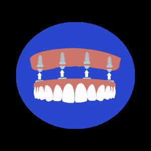 Dental Implants Houston Contemporary Dental Implants