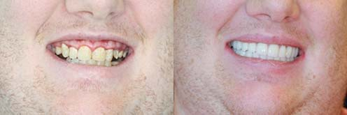 tooth implants before after