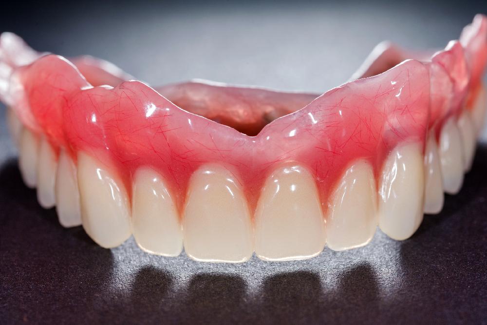 all on 4 dental